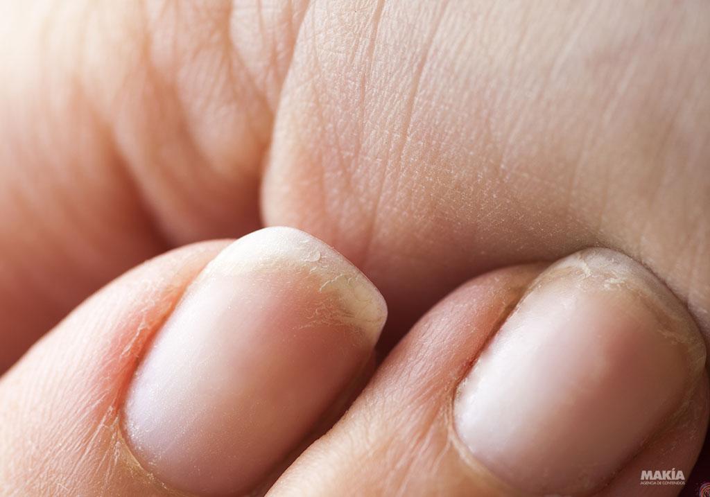 5 formas en que tus manos te hacen ver mayor y qué hacer para ...